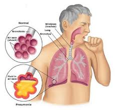 obat tradisional infeksi paru paru